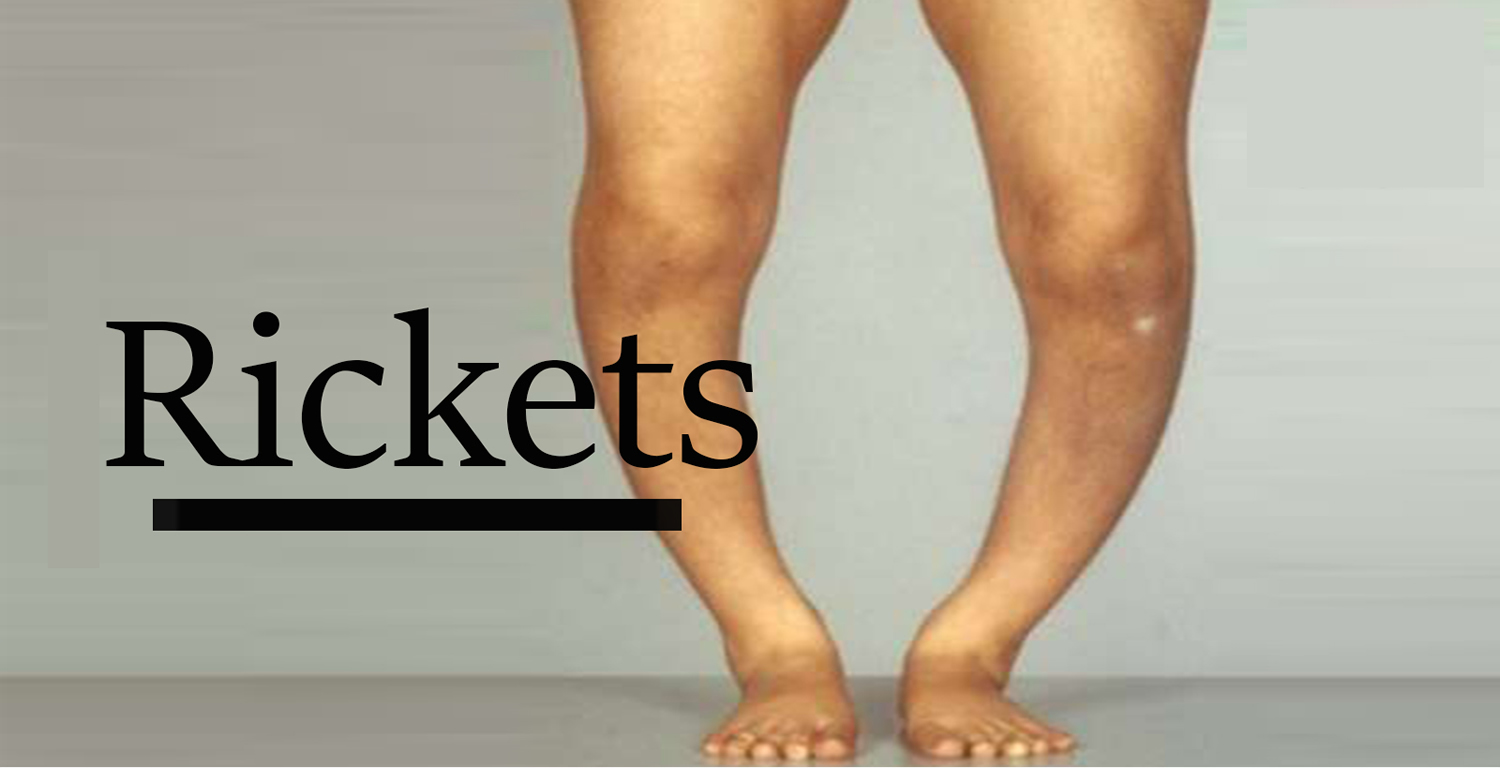 Rickets in a child - description, classification and treatment measures