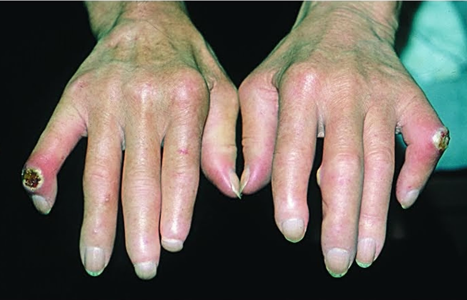 picture Scleroderma – Types, Symptoms, And Causes Natural Treatment Options