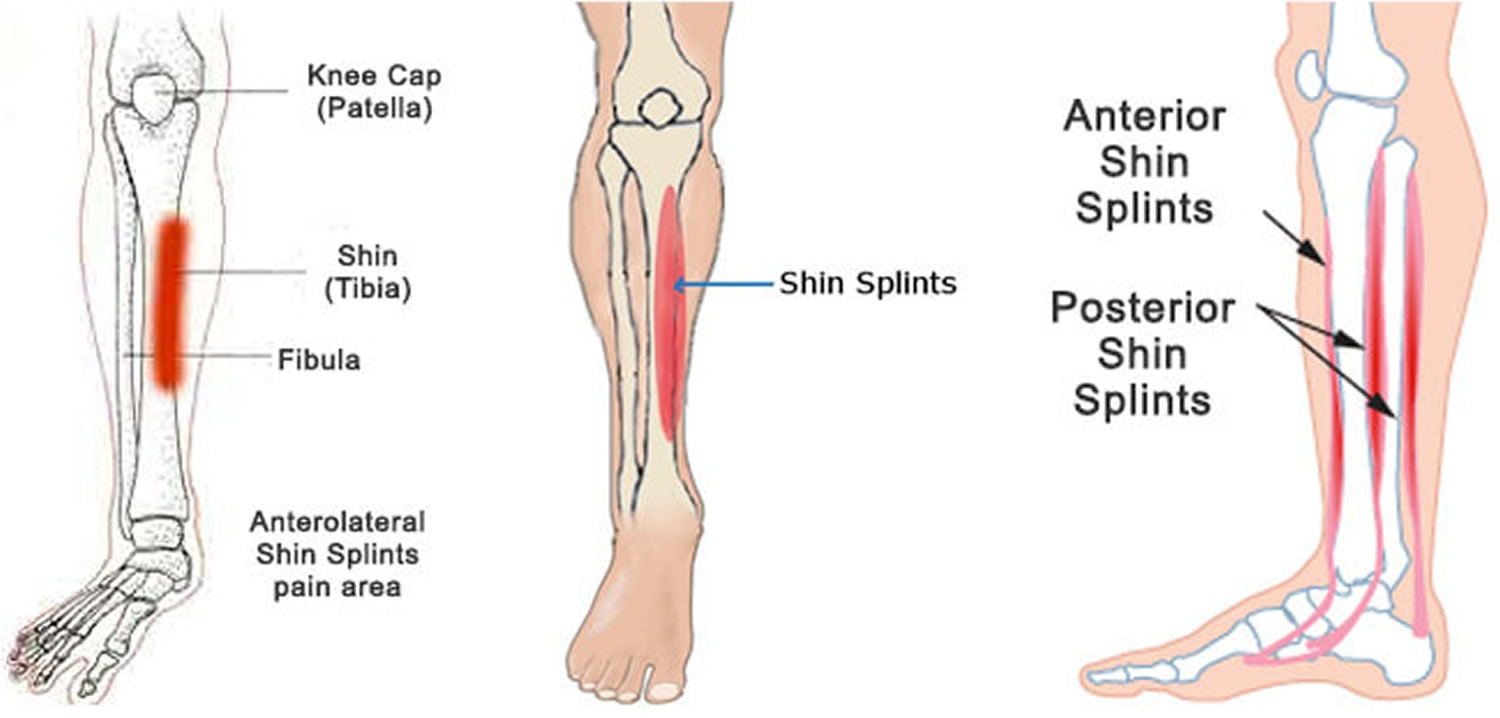shin splints - causes, symptoms, how to get rid of shin splints