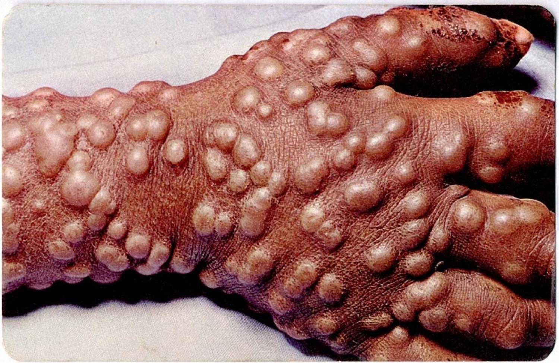 Smallpox rash