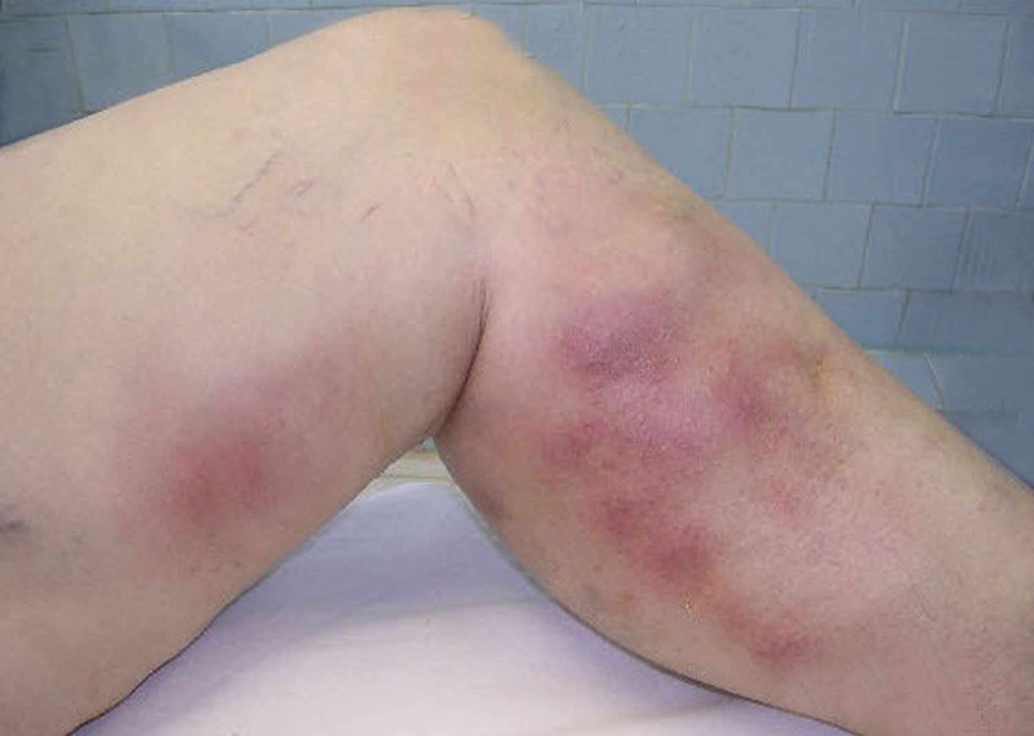thrombophlebitis causes signs symptoms treatment guidelines