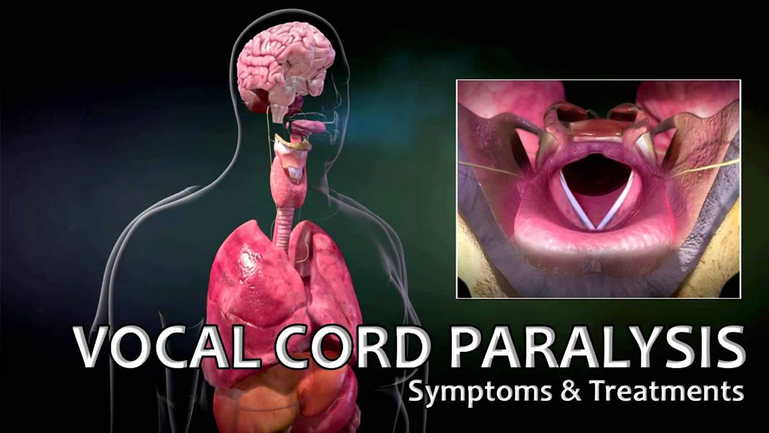 vocal cord paralysis causes symptoms recovery surgery treatment rh healthjade com