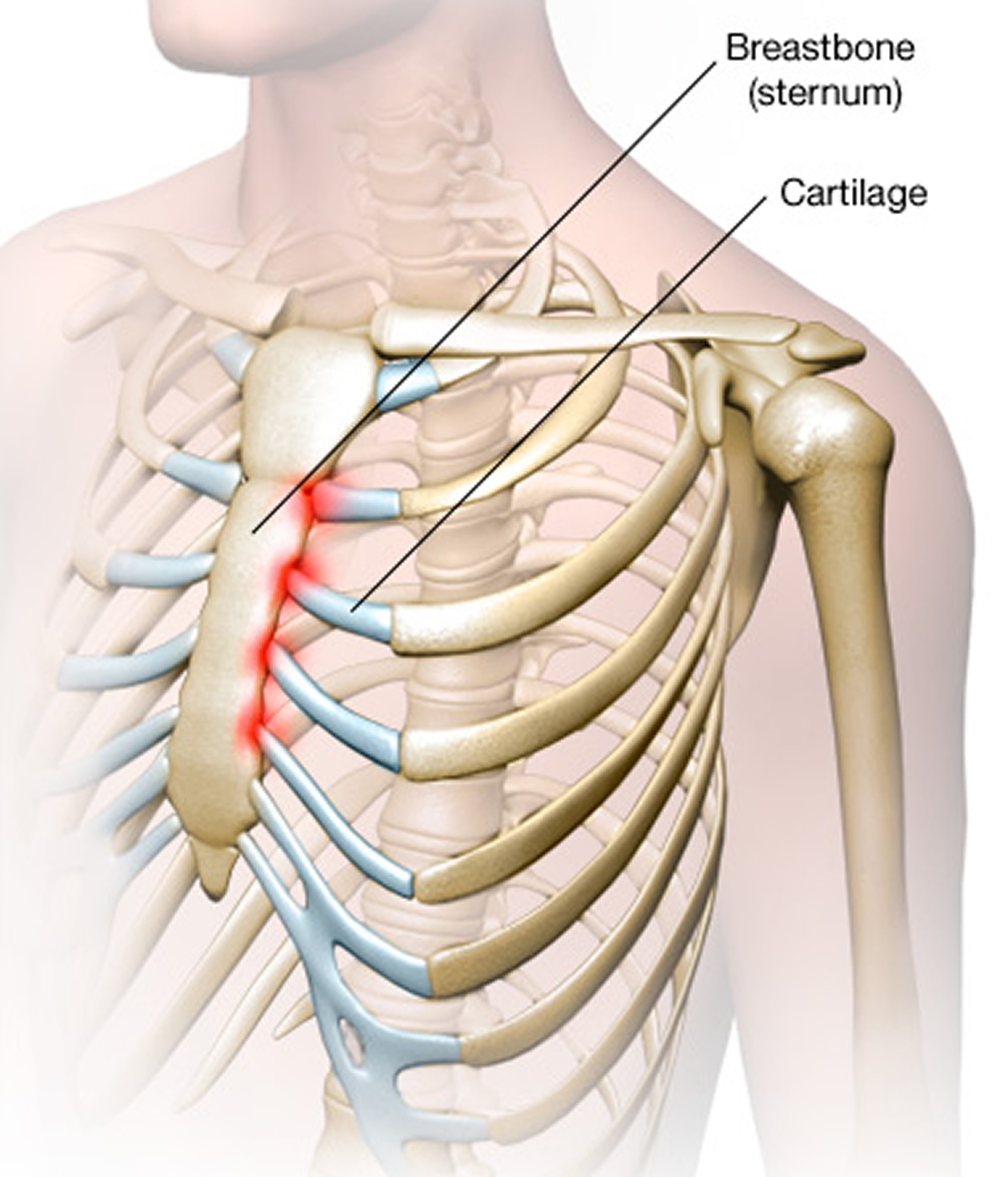 What can speak pain in the sternum on the left 41