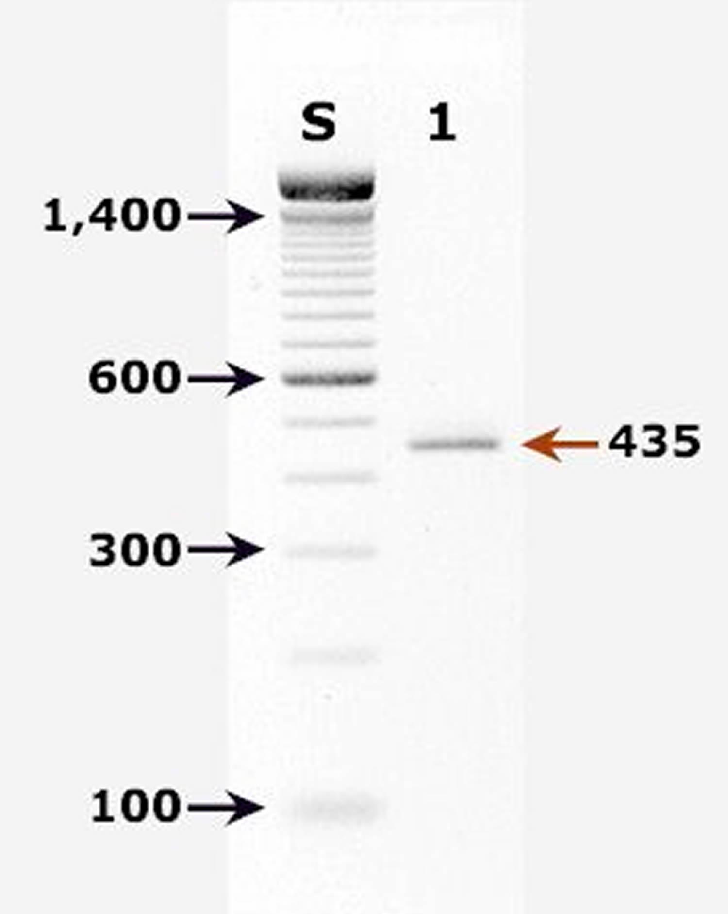 Cryptosporidium parvum DNA