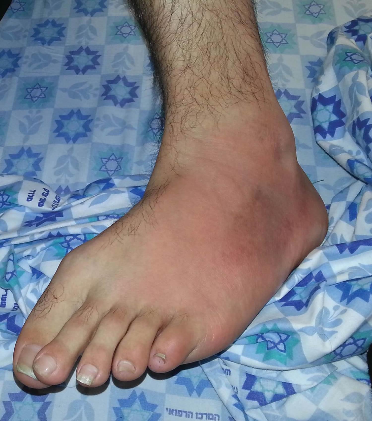 Familial Mediterranean fever ankle rash