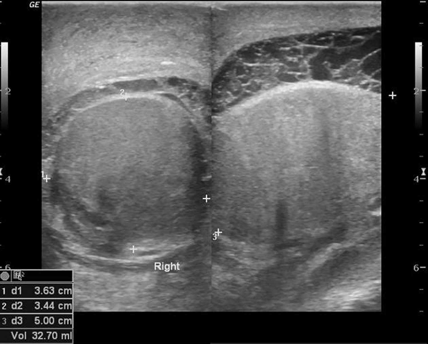 Orchitis ultrasound