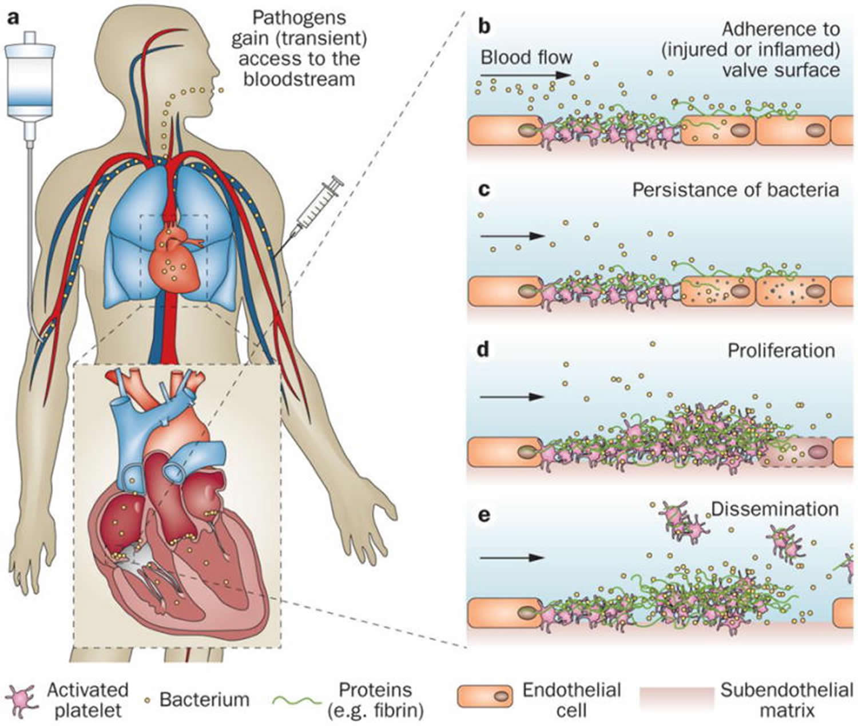 Pathogenesis of endocarditis
