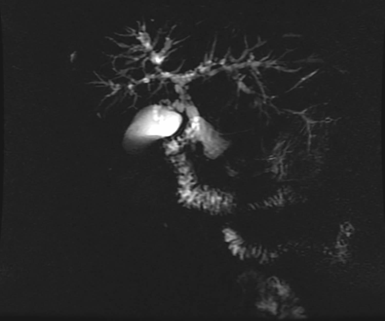 Primary sclerosing cholangitis - magnetic resonance cholangiopancreatography