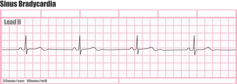 Sinus bradycardia ECG