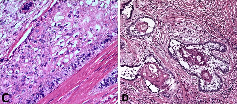 Ameloblastoma - Histology, Radiology, Surgery & Treatment