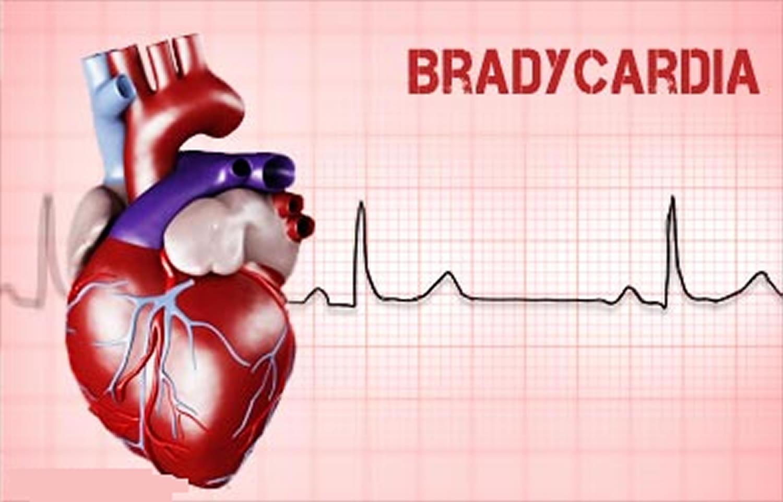 Bradycardia: Symptoms and Treatment 95