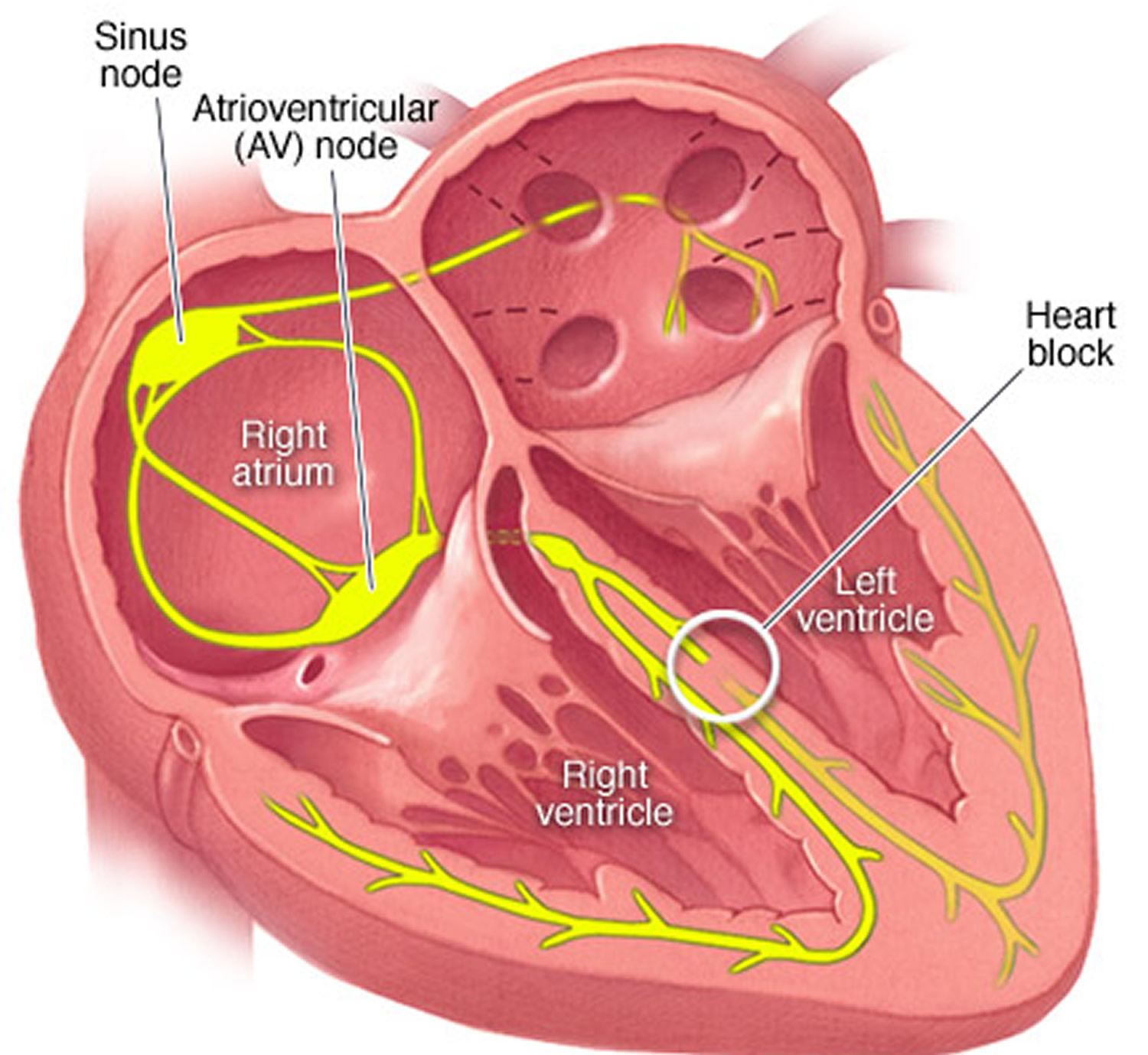 heart diagram bundle branch block