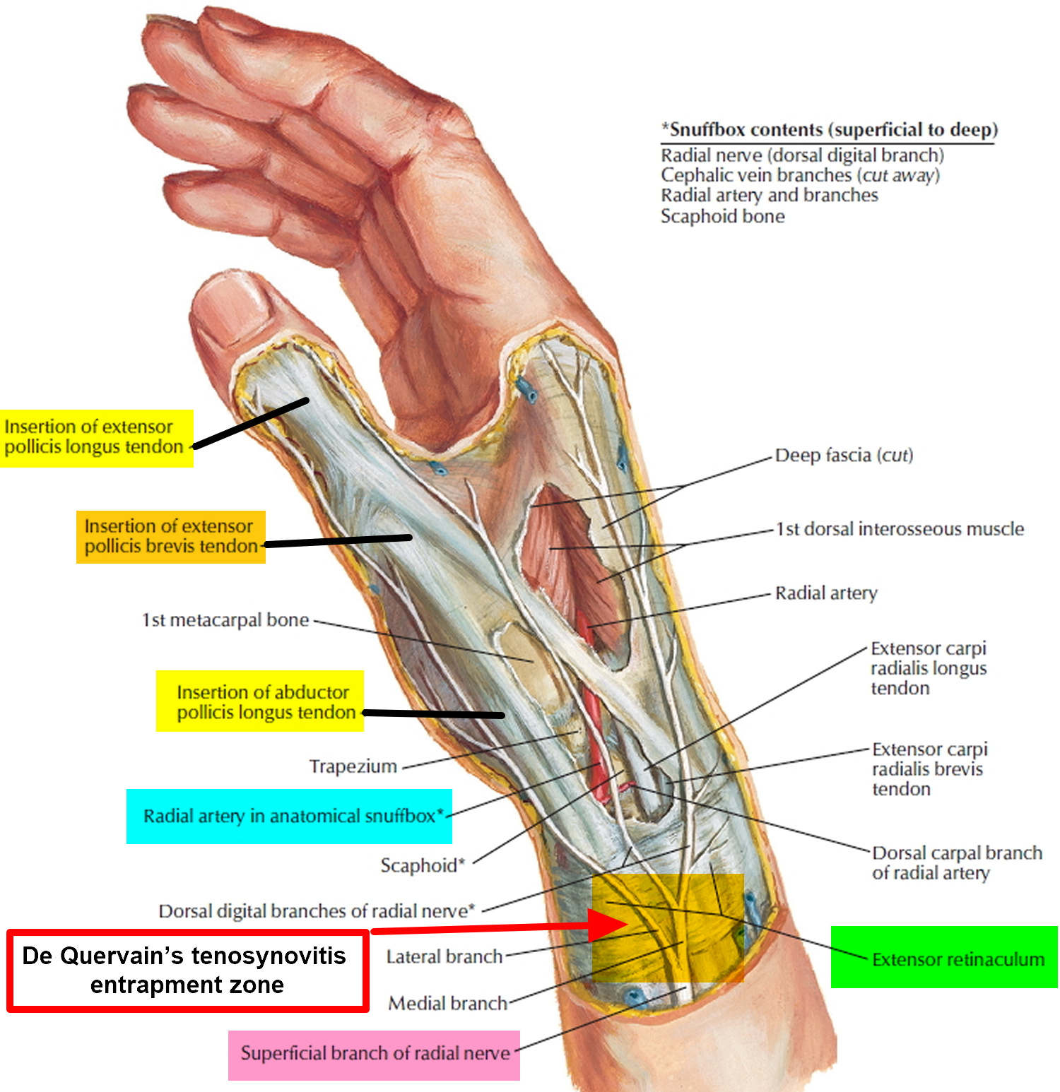 De Quervains Tenosynovitis Causes Symptoms Test Exercise Surgery