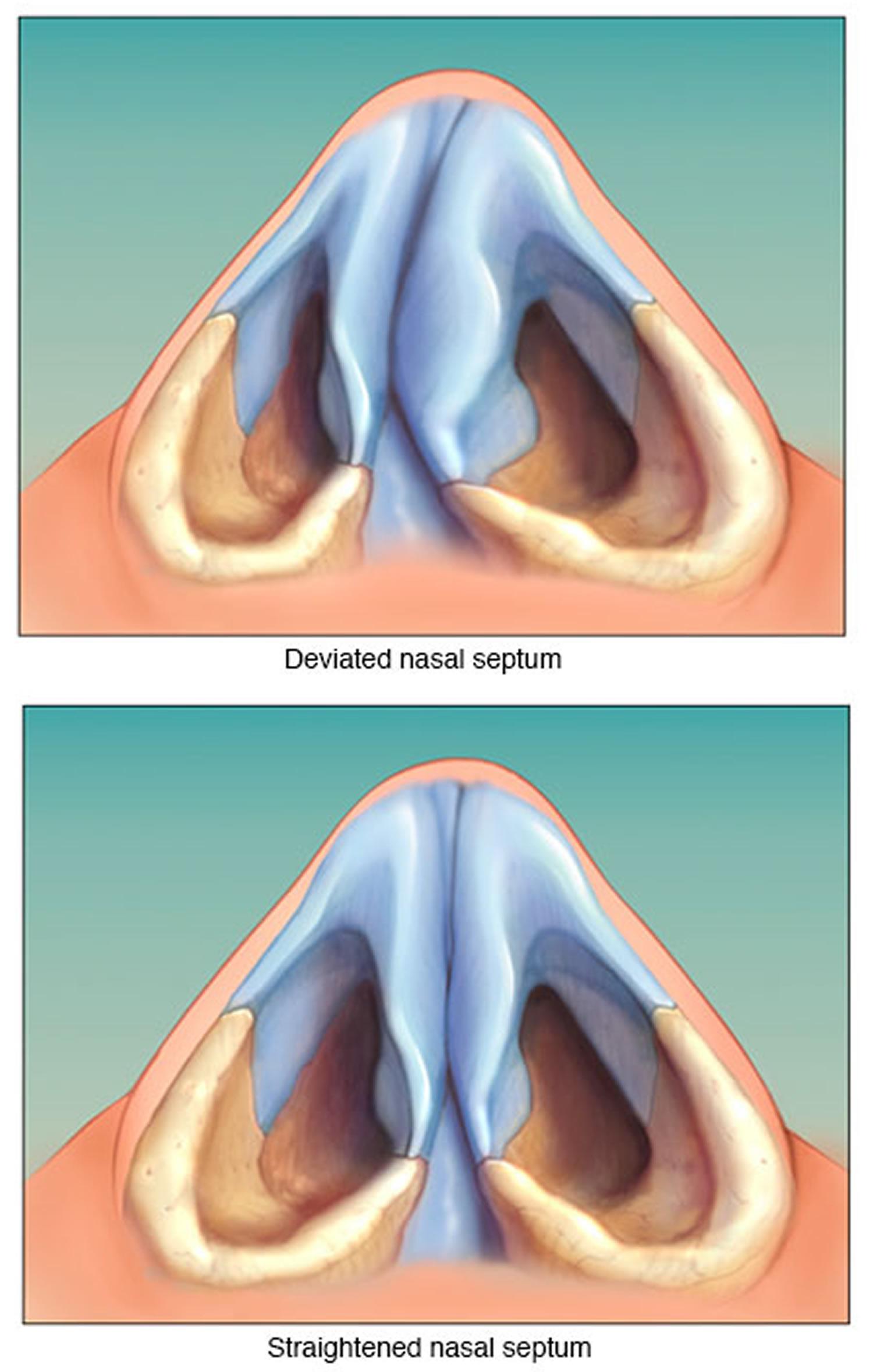 Deviated Septum - Causes, Symptoms, How To Fix A Deviated Septum