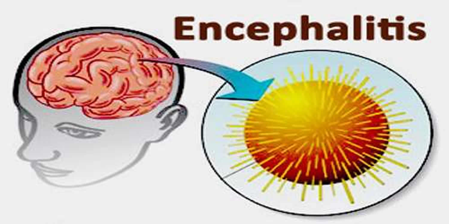Encephalopathy: symptoms, causes, treatment methods and effects