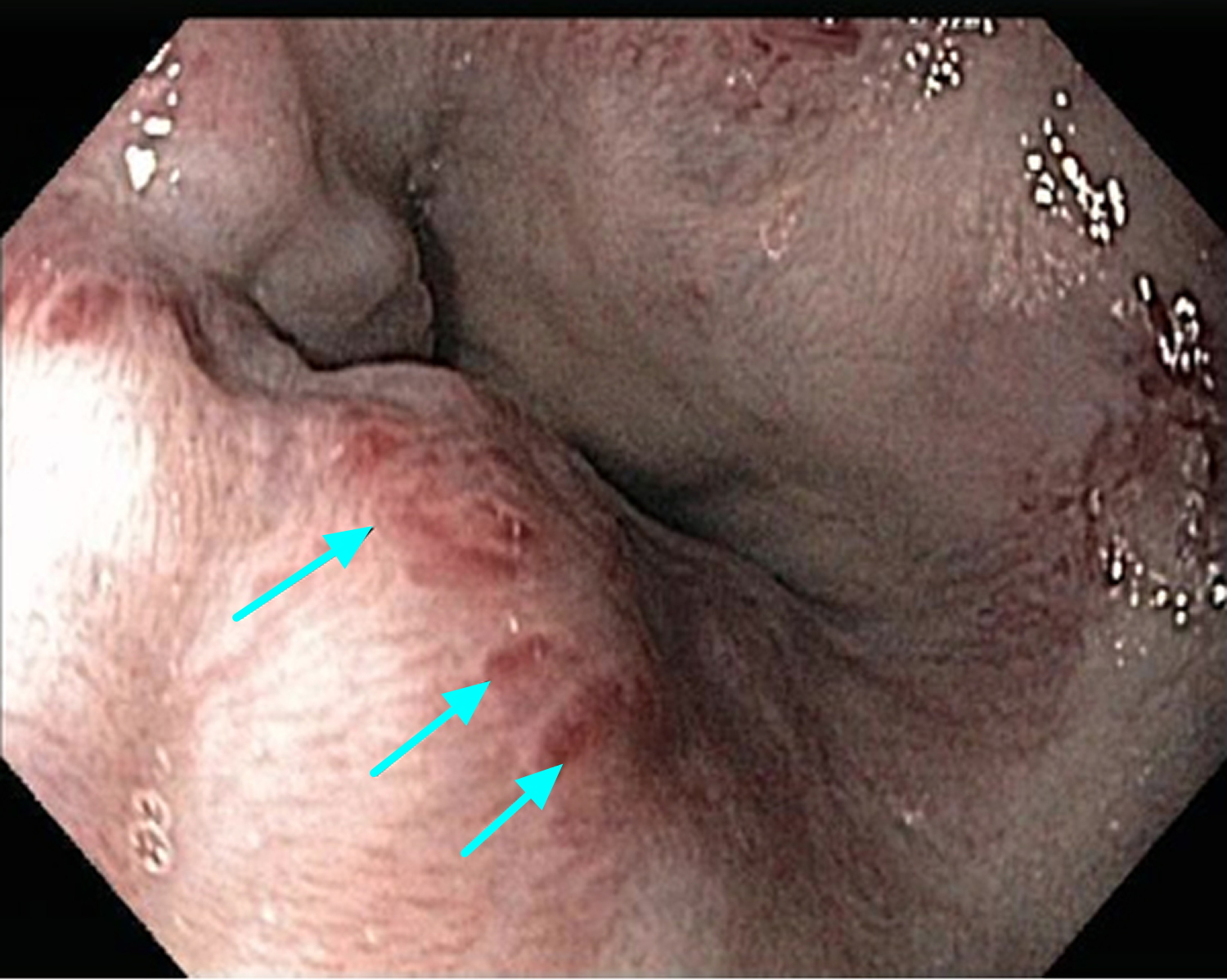 esophageal varices with red marks or red spots