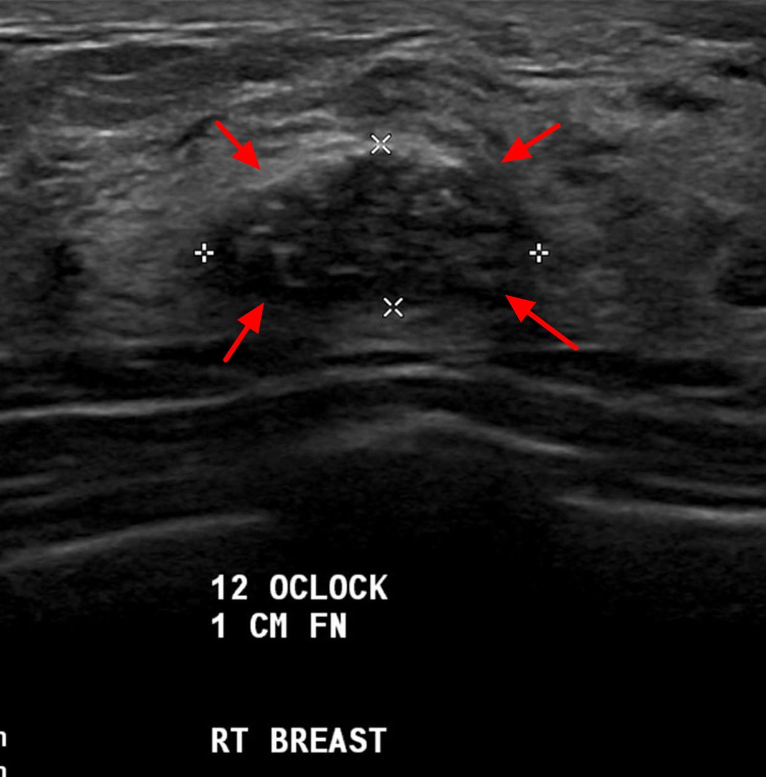 Fibroadenoma ultrasound