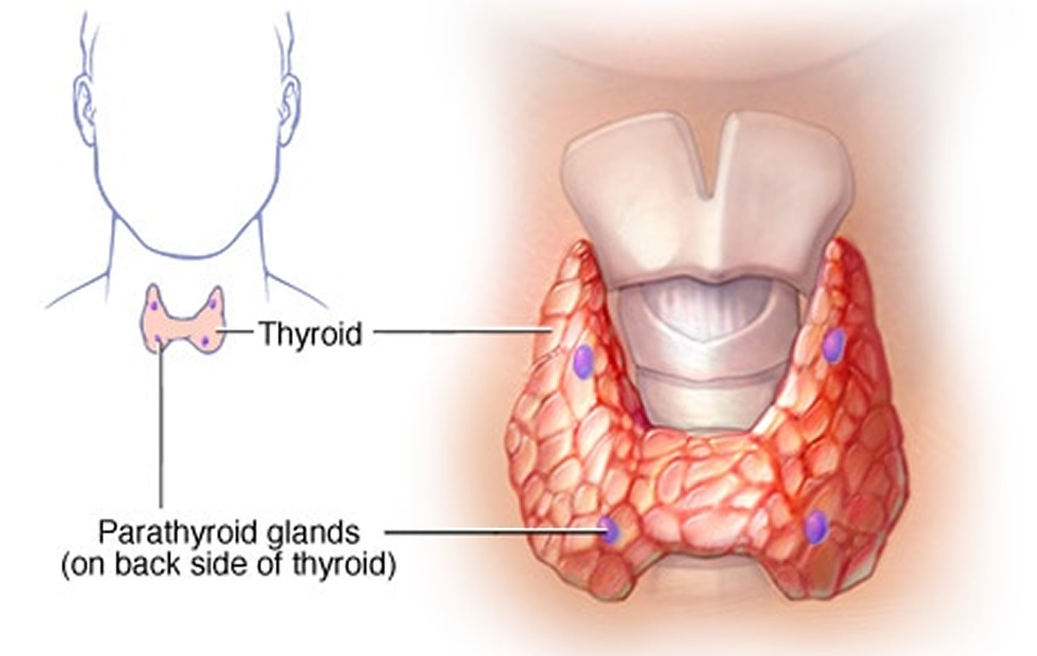 Hypoparathyroidism Causes Signs And Symptoms Diet Treatment