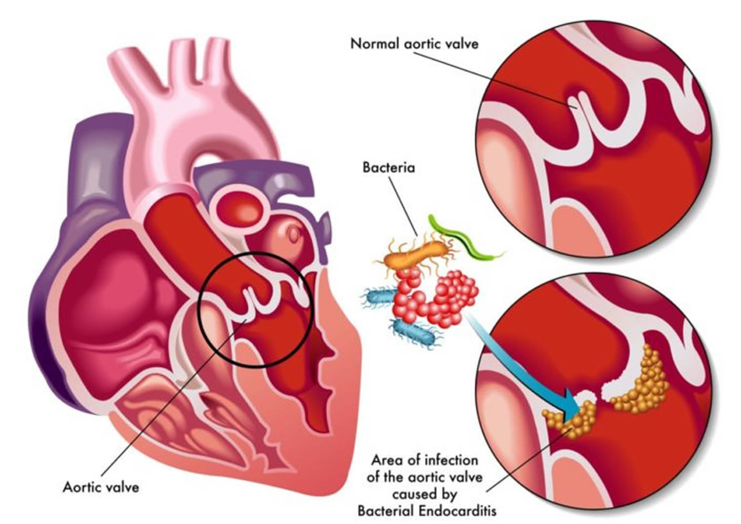 Infective Endocarditis - Causes, Signs, Symptoms ...