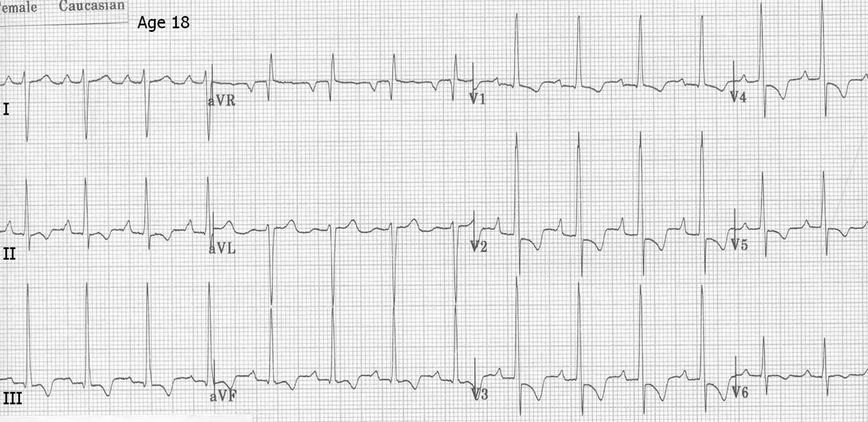 Left ventricular hypertrophy ECG