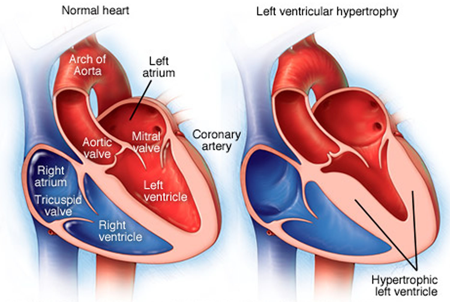 Myocardial hypertrophy: types, causes, symptoms, diagnosis and treatment 62