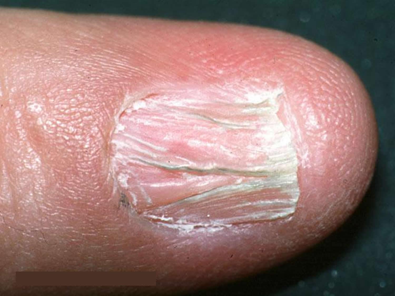 lichen planus nail