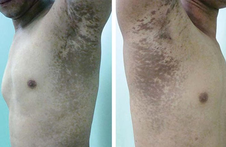 lichen planus pigmentosus
