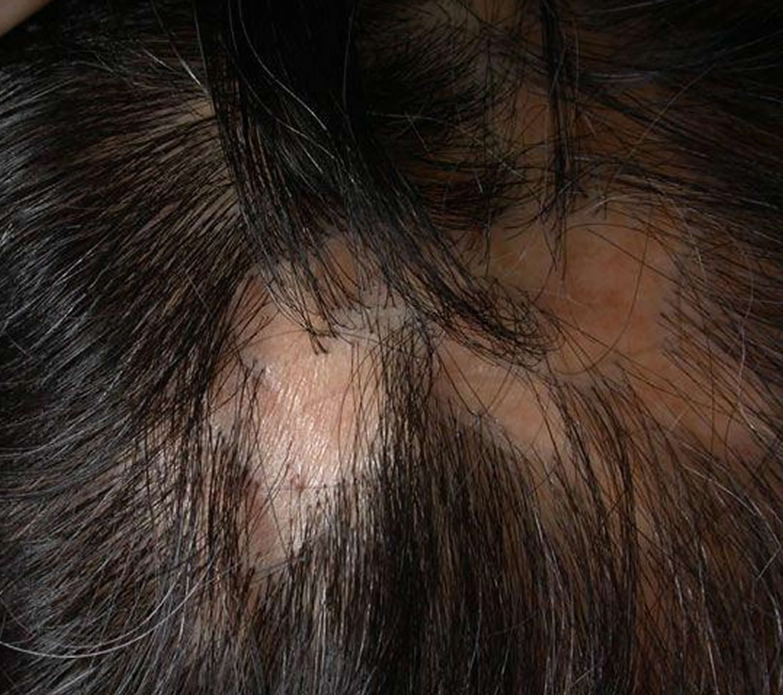 lichen planus scalp