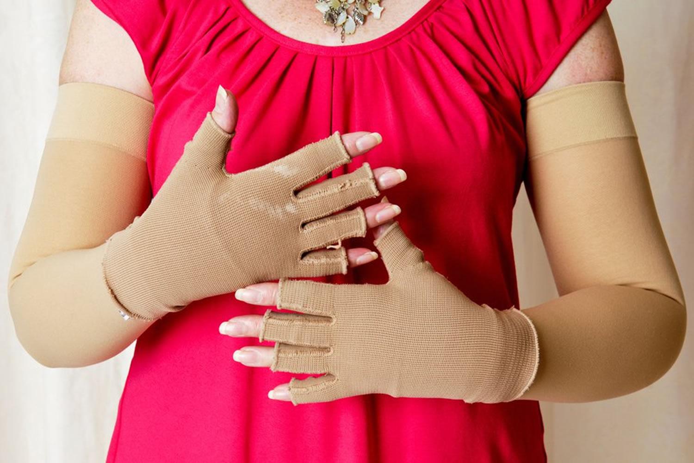 lymphedema compression garment