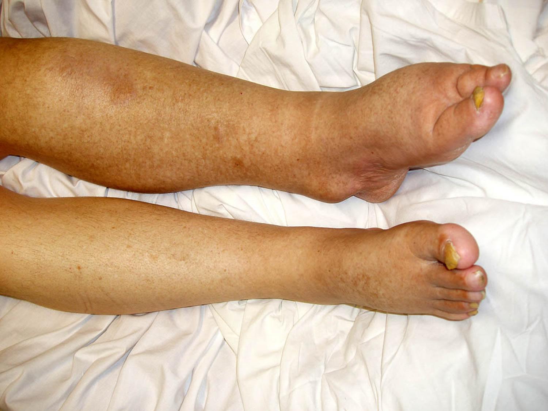 Lymphedema leg