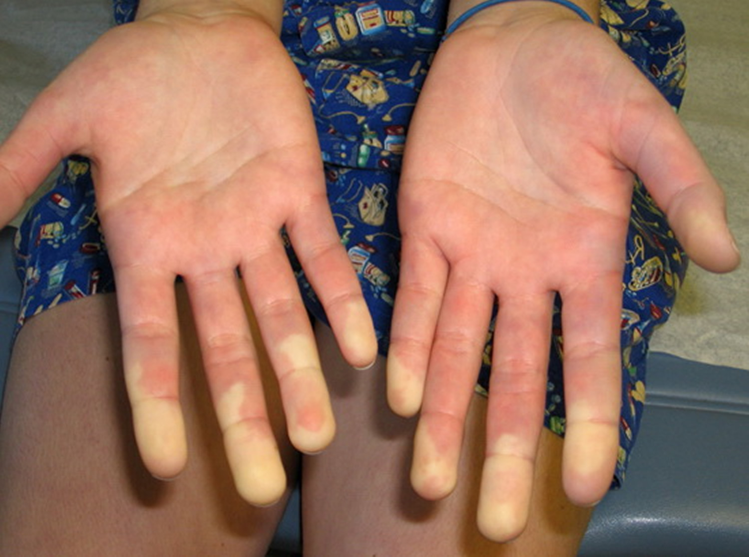 Tissue connective mixed pictures disease