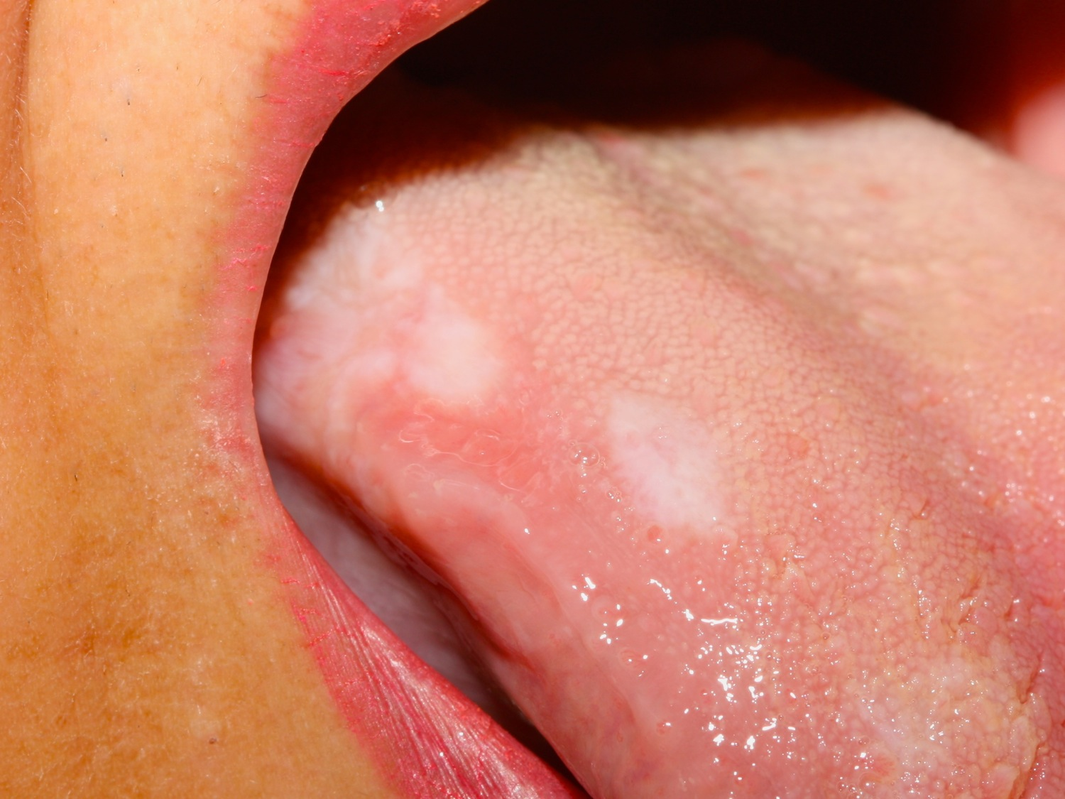 oral lichen planus tongue
