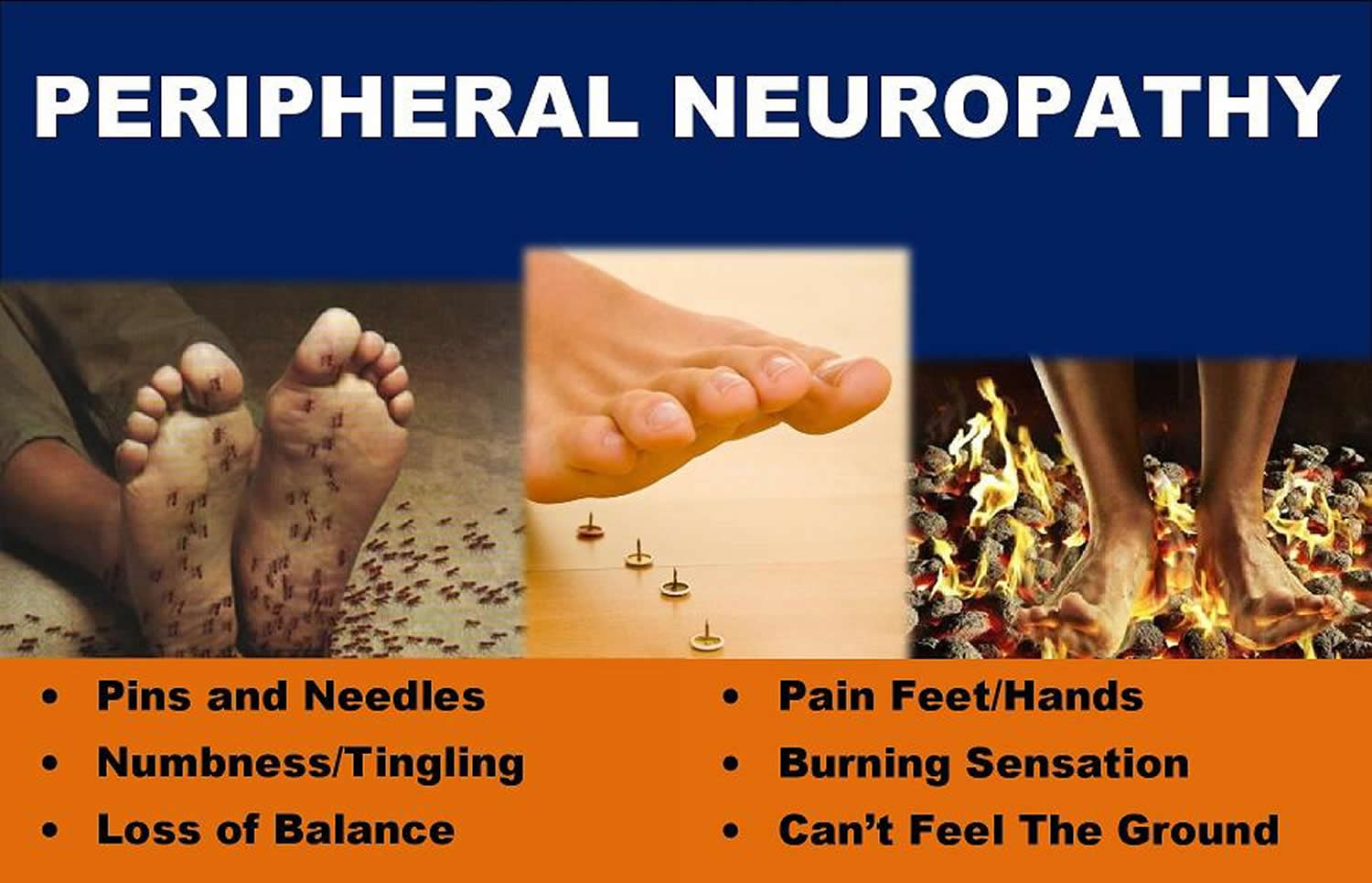 What is polyneuropathy and how to treat it