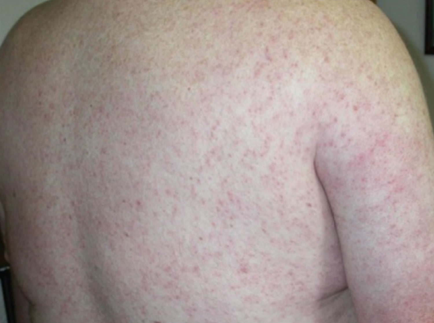 West Nile virus rash