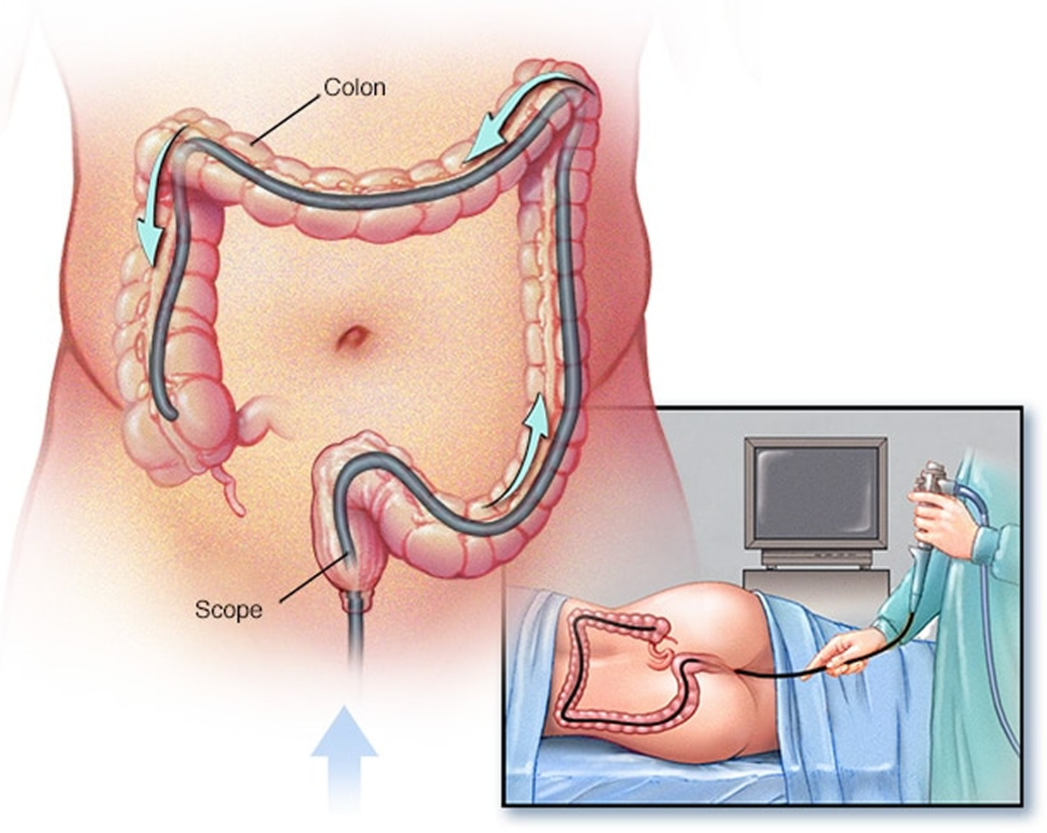 Colonoscopy Procedure Prep Diet Side Effects And Risks