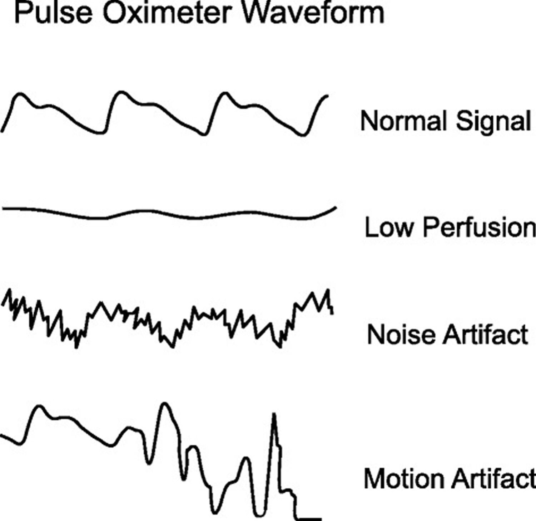 common pulsatile signals on a pulse oximeter