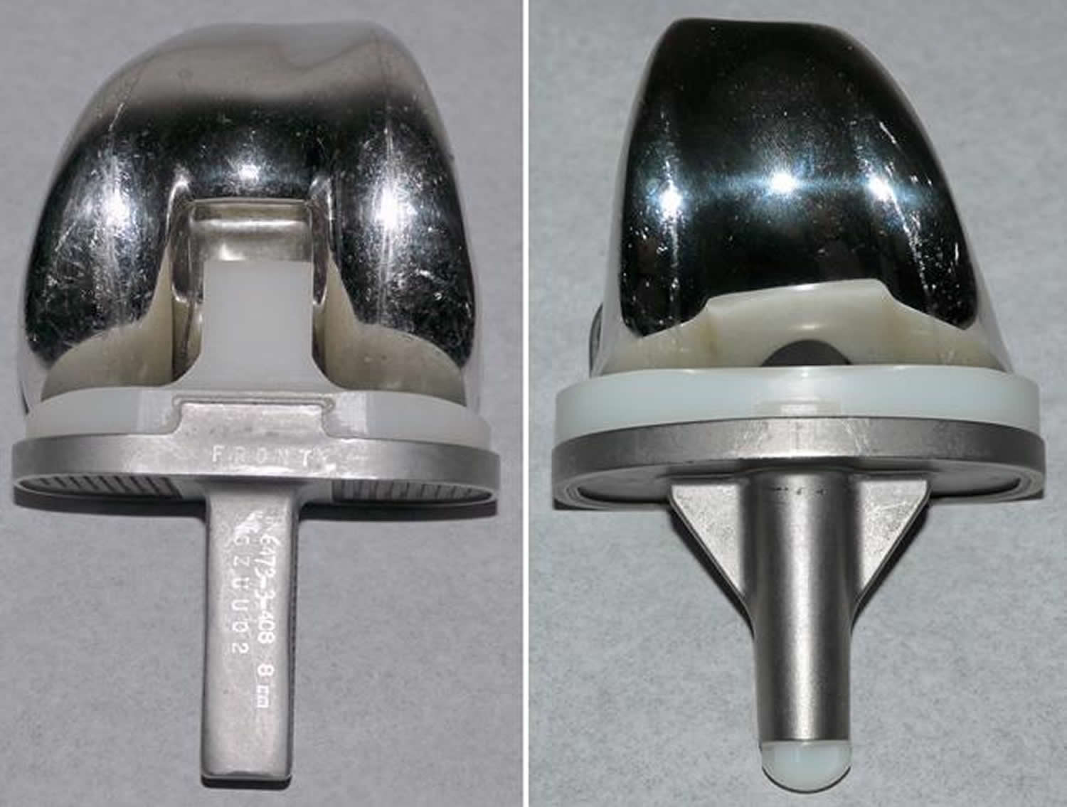 Different types of knee implants