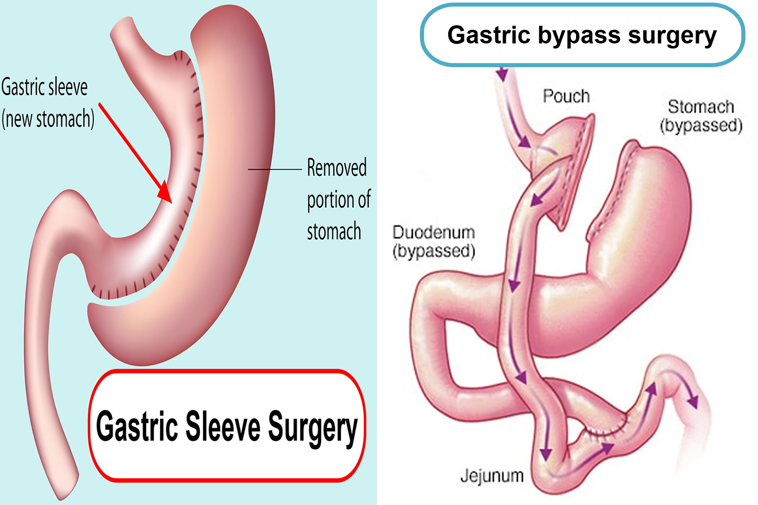 gastric bypass vs sleeve Choose between a gastric sleeve and gastric bypass call colorado bariatric surgery institute today while there have been many bariatric procedures that have evolved over time, the roux-en-y gastric bypass and the gastric sleeve seem to have withstood the test of time.
