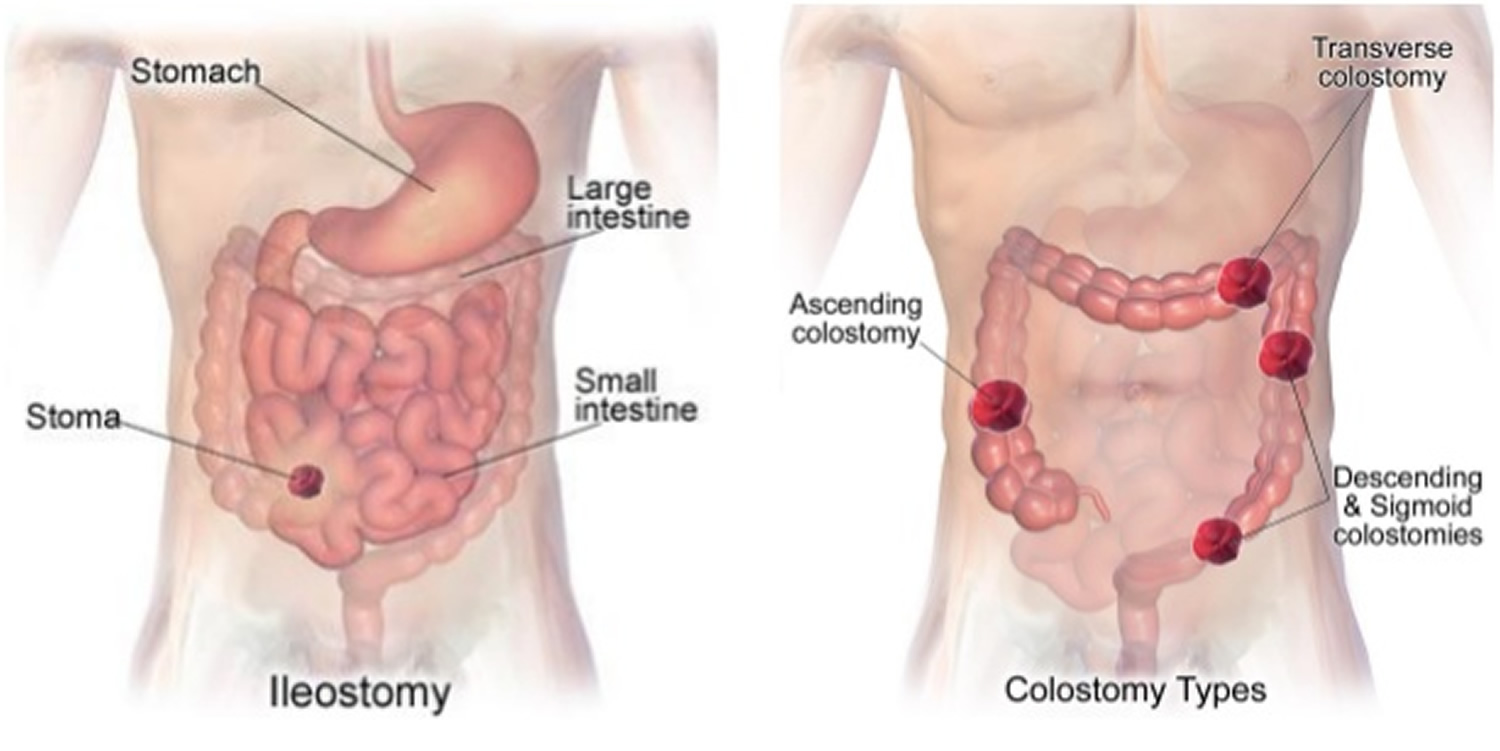 Colostomy How To Change A Colostomy Bag Amp Living With It