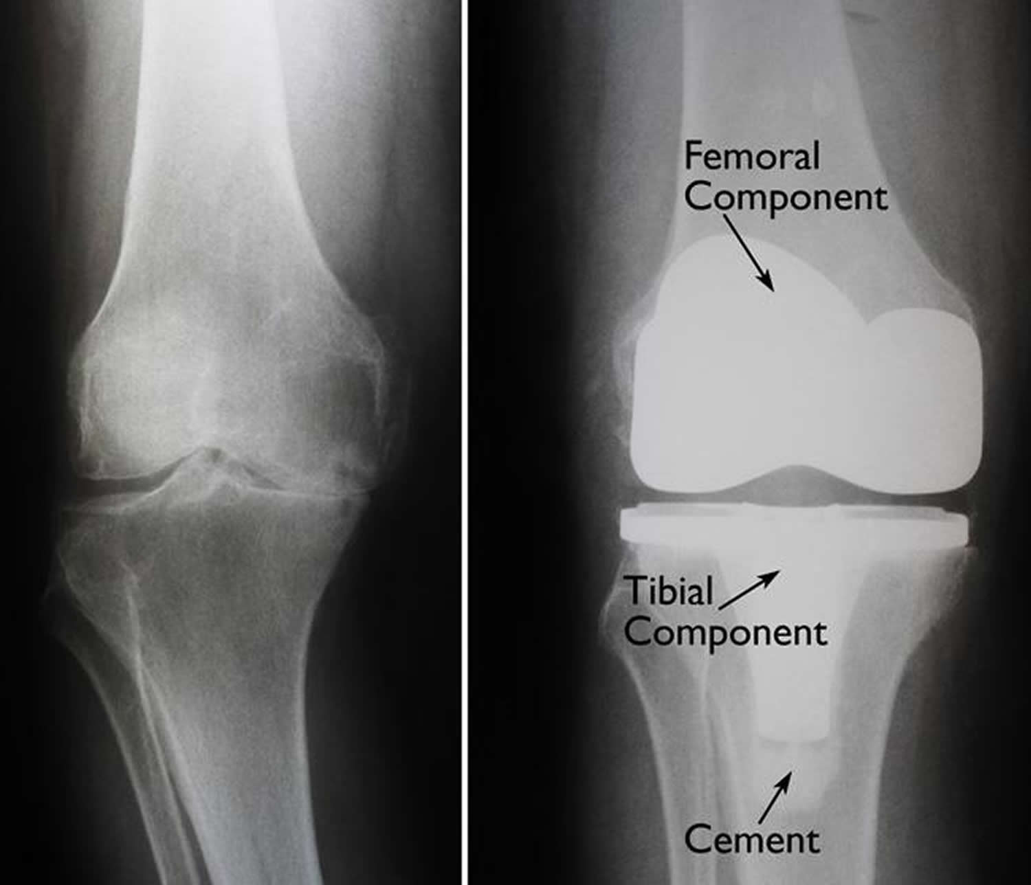 Knee replacement surgery before and after
