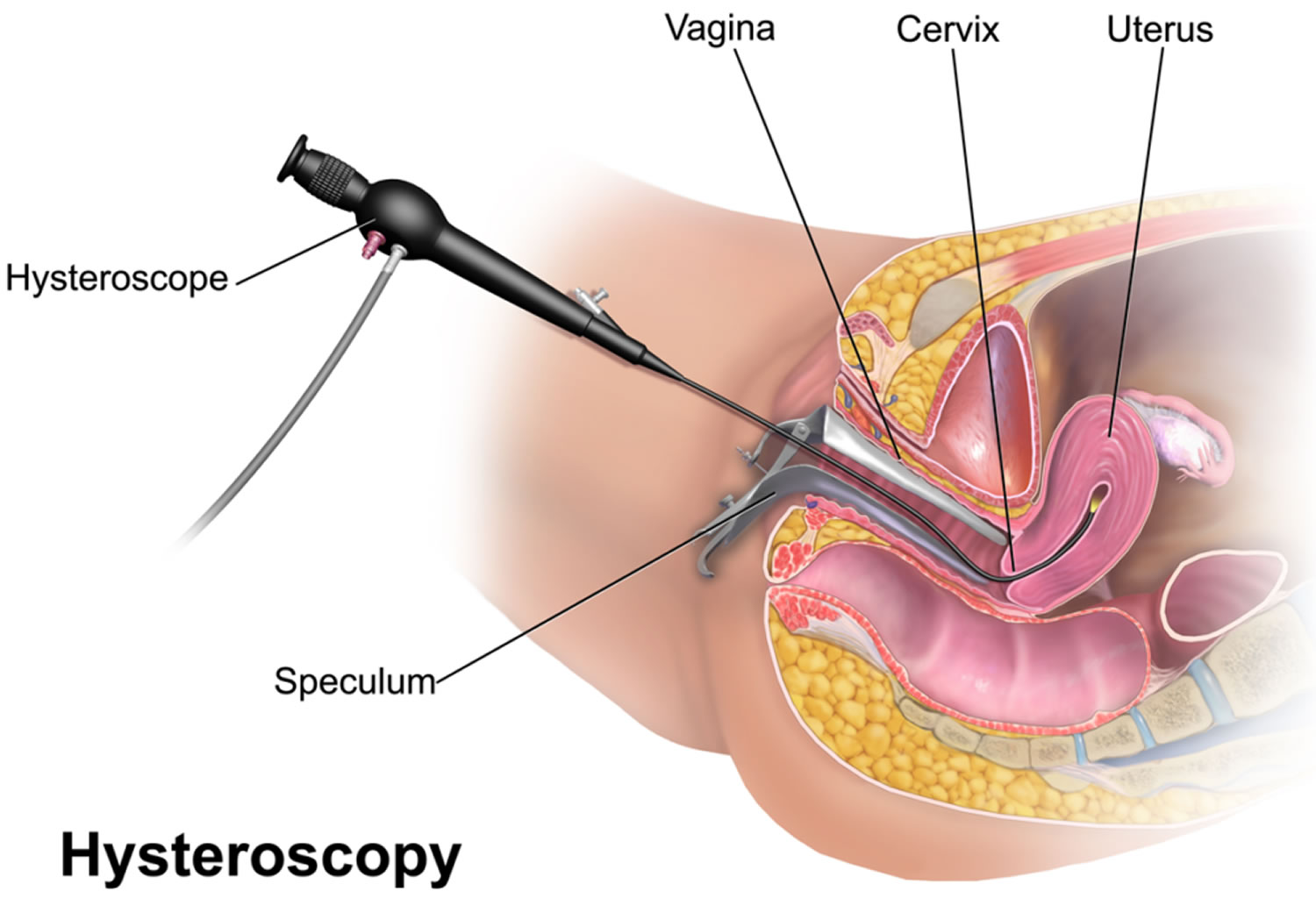 Operative Hysteroscopy