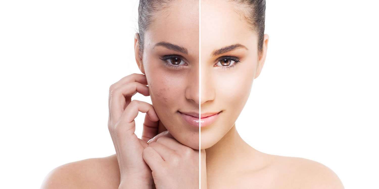 Facial affects peel chemical epidermal side