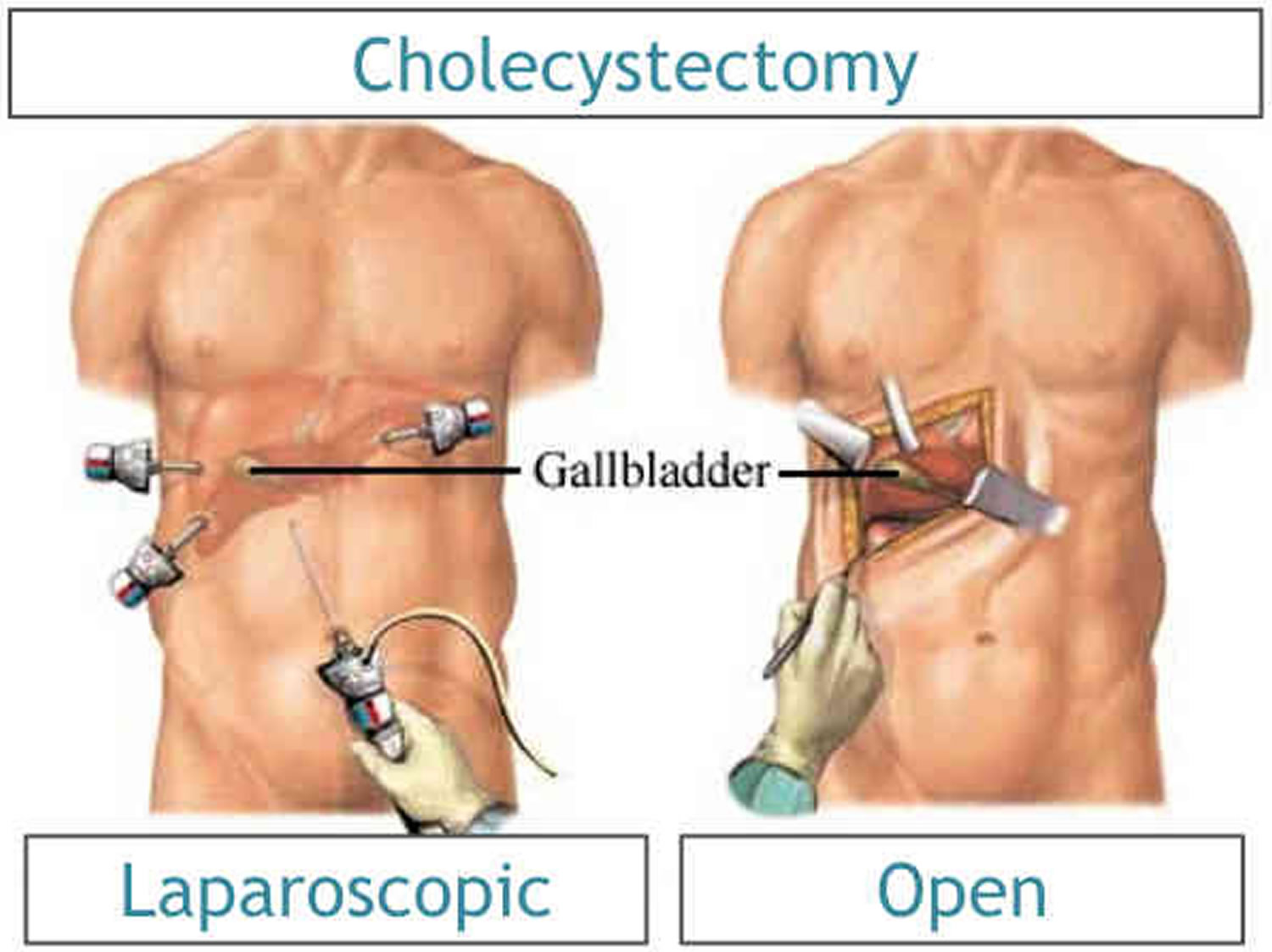 Whether to remove the gallbladder 22