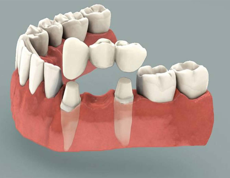 Tooth Rubbing Against Bridge