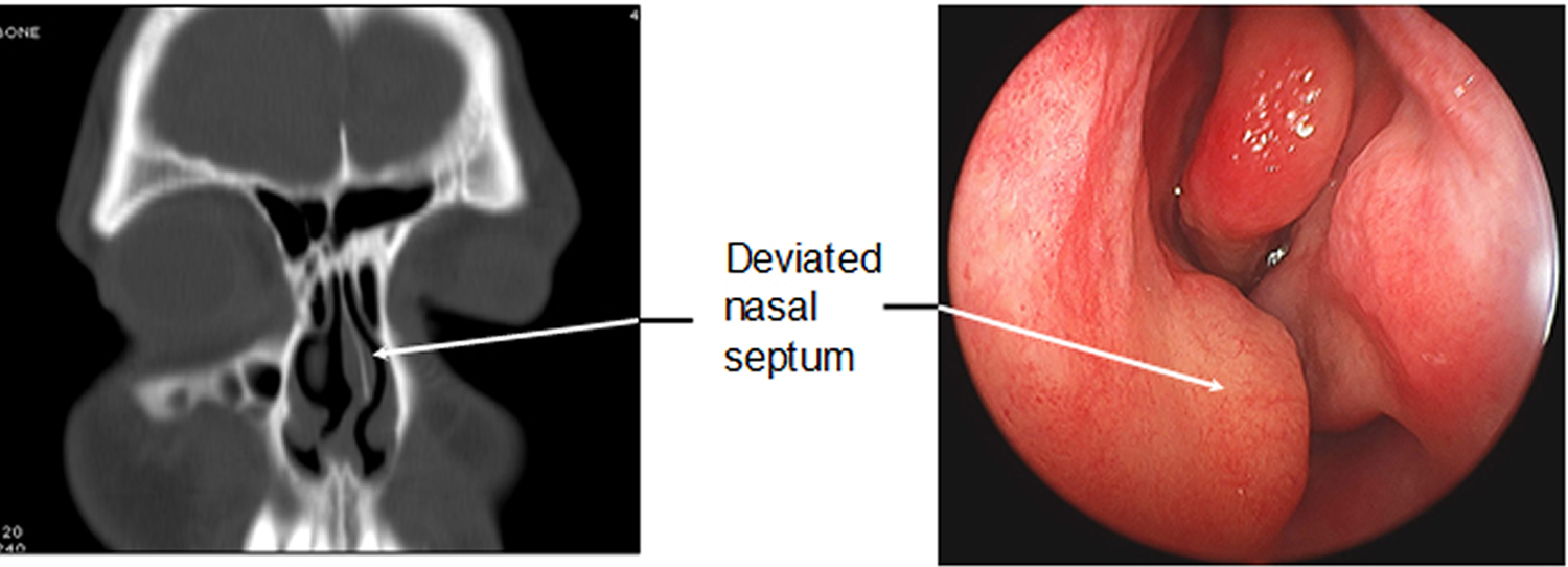 deviated-nasal-septum