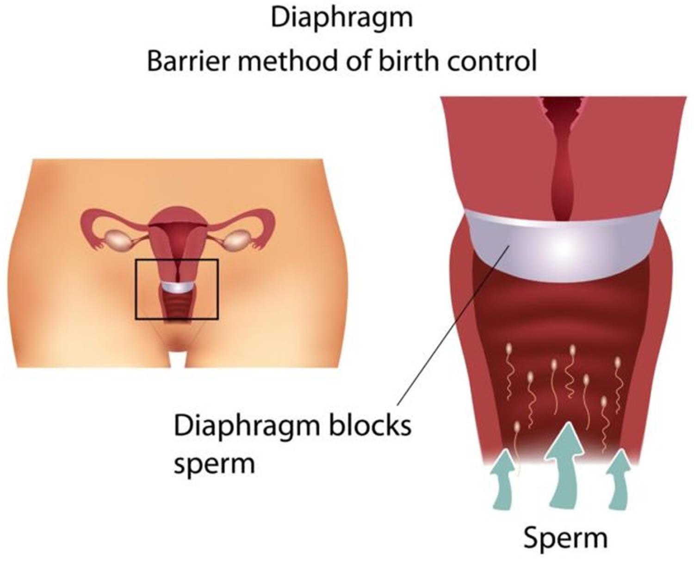 Membran-fødselskontrol - Hvordan fungerer en membran og-8021