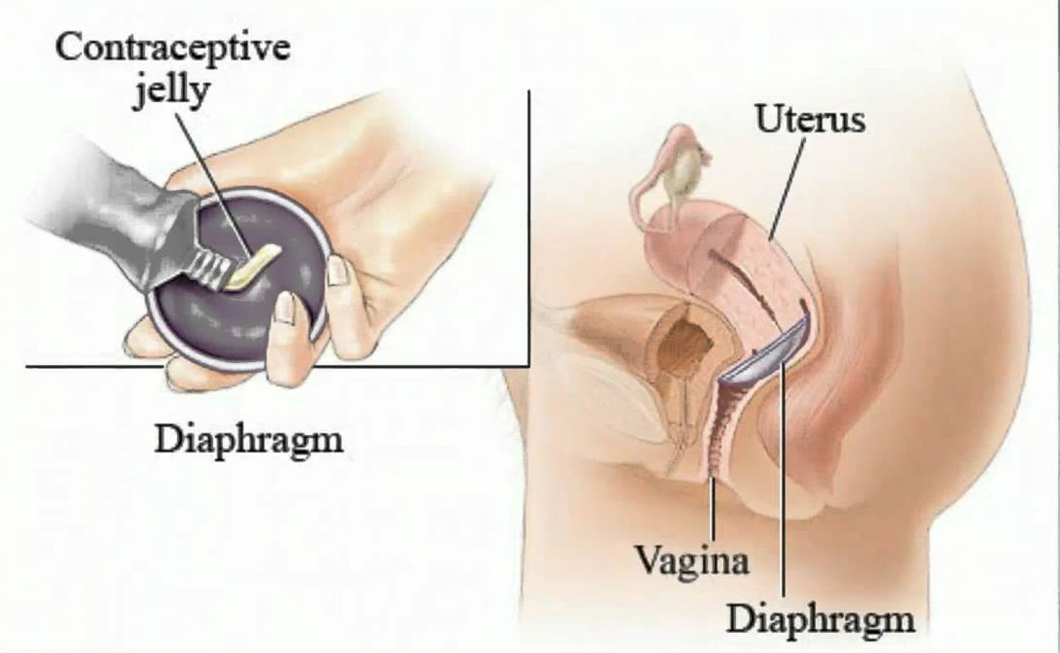Diaphragm Birth Control How Does A Diaphragm Work And Effectiveness