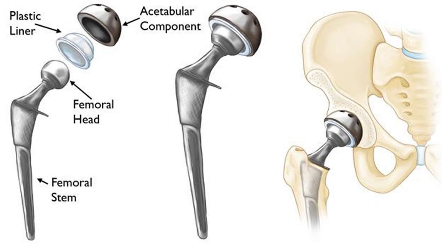 Hip Replacement Surgery Recovery Time Alternatives Risks