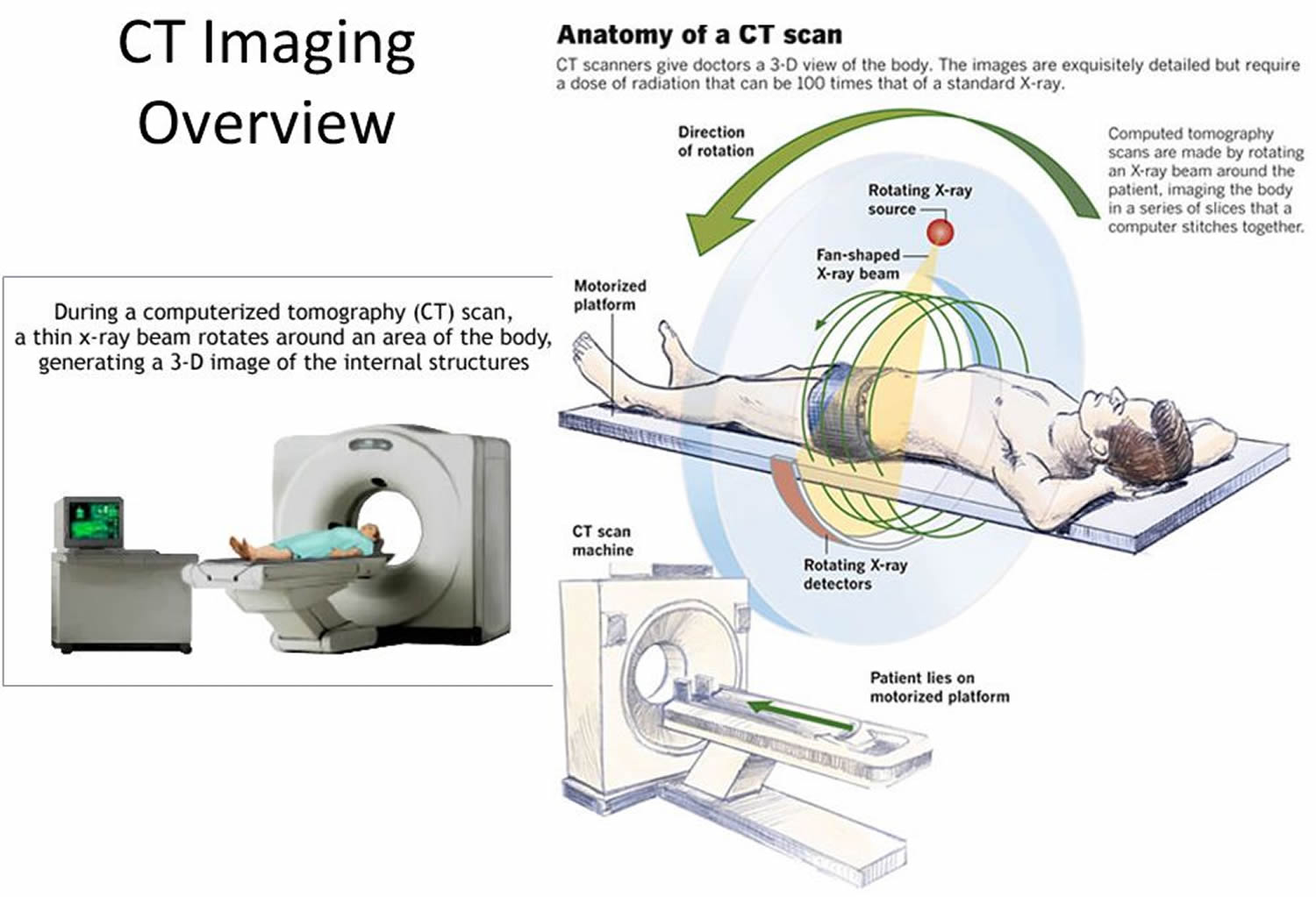 how CAT scan works
