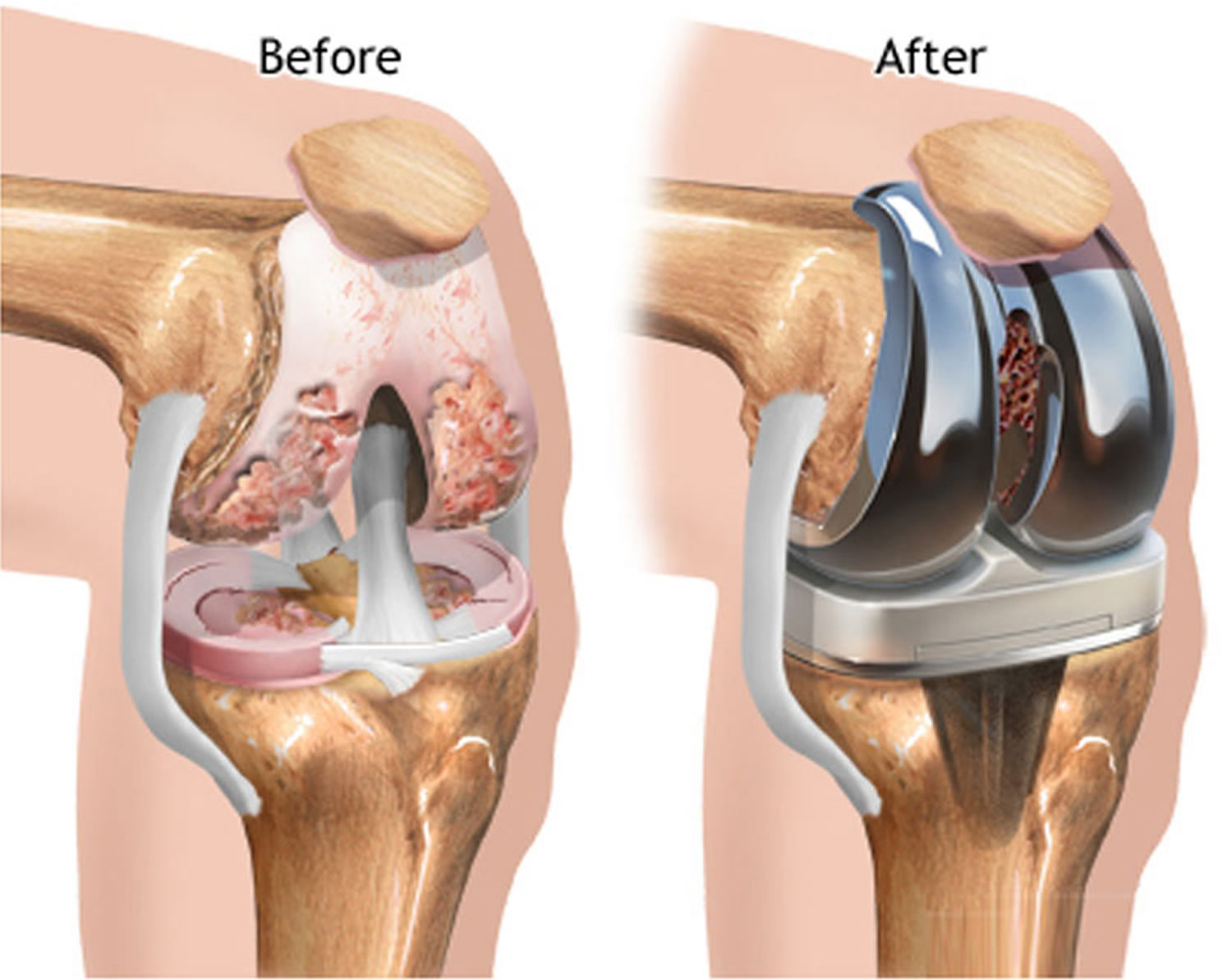 knee replacement surgery recovery time complications rh healthjade com knee joint replacement diagram knee replacement surgery diagram